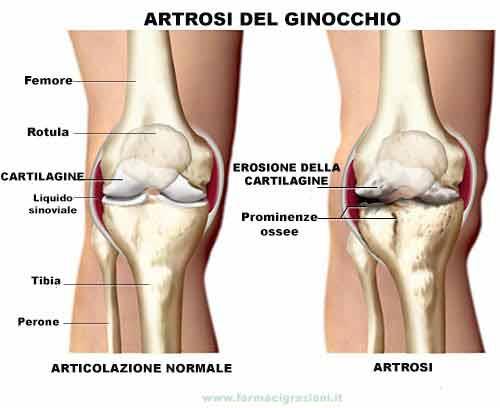 Cartilagine di Squalo per Artrosi del ginocchio